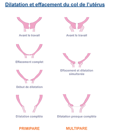 dilatation effacement col