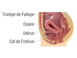 Sterilisation feminine