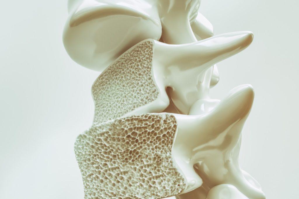 HopitalKirchberg_Osteoporose_Diagnostic