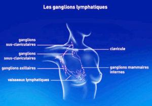 HopitalKirchberg_CancerSein_GanglionsLymphatiques